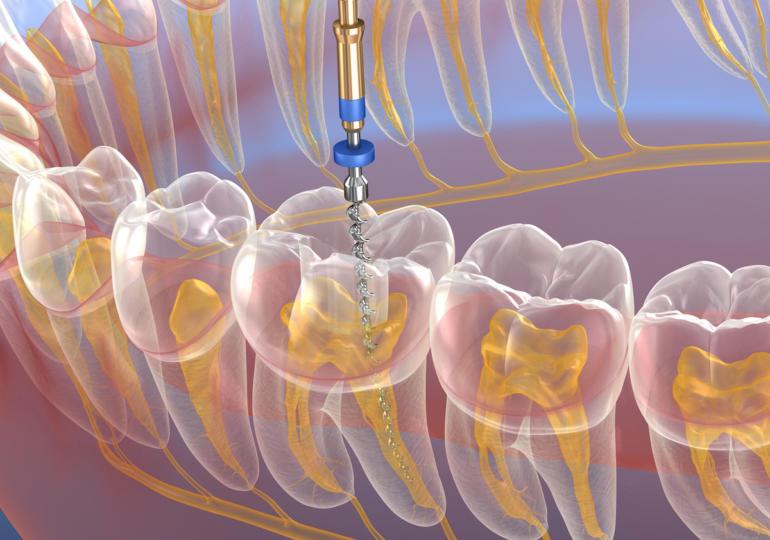 Devitalizzare un dente: tempo, strumenti e passaggi chiave